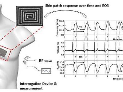 Passive Self Resonant Skin Patch Sensor to Monitor Intraventricular Volume using Electromagnetic Properties of Fluid Volume Changes