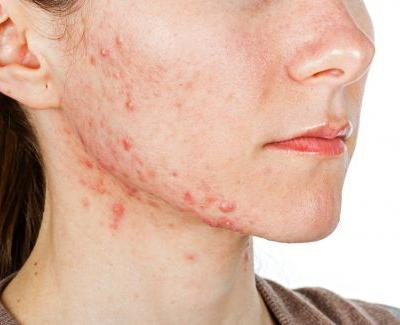 Prebiotic combination shows metabolic benefits for adults with acne: Pilot data