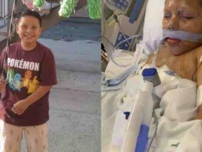 Boy given lit firework on 10th birthday as cruel prank explodes in his hand