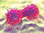 Protein which speeds up breast cancer 'could be a key to treating aggressive tumours'