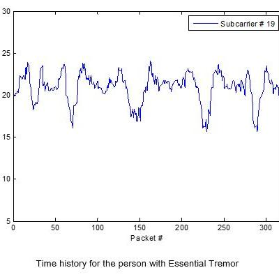 Detection of Essential Tremor at the S-Band