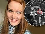 Woman who suffered from symptoms for years has been diagnosed with a brain tumour