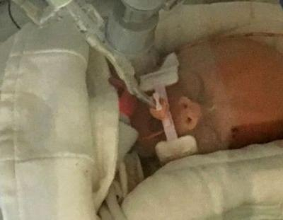 Baby whose mother chose giving birth over chemo has died