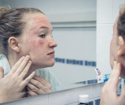 Dermatologists Explain How to Treat Facial Eczema and Prevent Flare-Ups