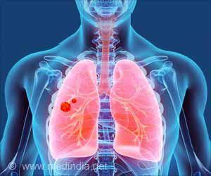 Early Detection of Lung Cancer Possible With Newly Identified Biomarker