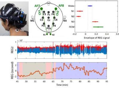 Transcranial Impedance Changes during Sleep: a Rheoencephalography Study