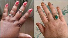 Chubby Fingers Are Getting Their Due Thanks To Social Media Movement