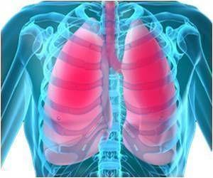 Radiation Enhances Cardiac Risk in Lung Cancer Patients