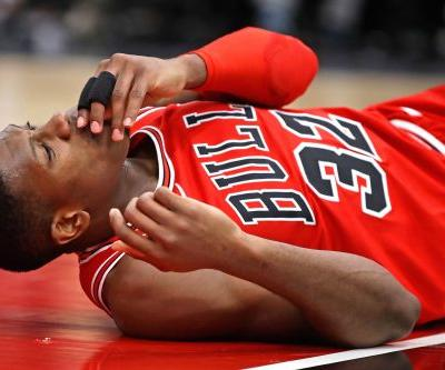 Kris Dunn shatters two teeth on face-first fall after dunk