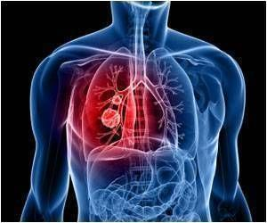 Method to Overcome False Positives in CT Imaging for Lung Cancer Discovered