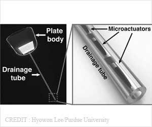 New Smart Drainage Device May Help Glaucoma Patients Save Their Eyesight