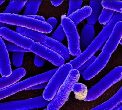 Adaptable bacteria: Study shows MRSA adapts to your skin's environment, increasing its ability to infect