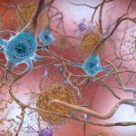 """Can Certain Medical Treatments """"Seed"""" Alzheimer's Disease?"""