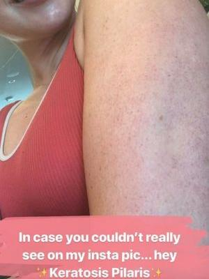 Iskra Lawrence Opens Up About Her Keratosis Pilaris on IG, and the Comments Show Why It's So Needed