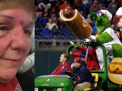 Flying hot dog hurts fan: 'It just came out of nowhere. And hard!'