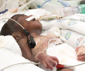 Non Invasive Oxygenation Method can Help Detect Problems With Vital Signs in Babies