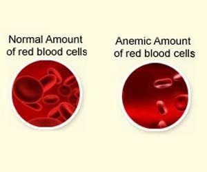 Weight Loss Surgery Increases Risk of Anemia After 10 Years