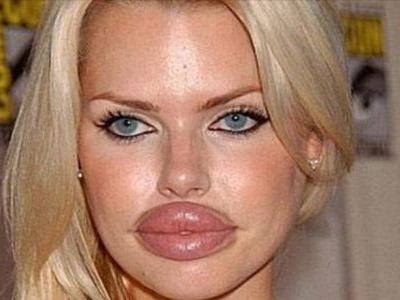 MPs are calling for fillers to be prescription only