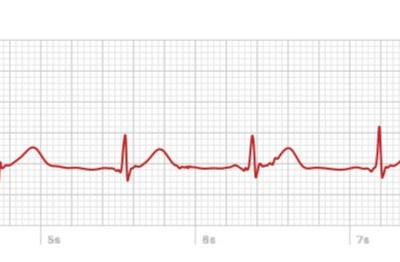 An ECG on your wrist: Apple's new heart-monitoring software