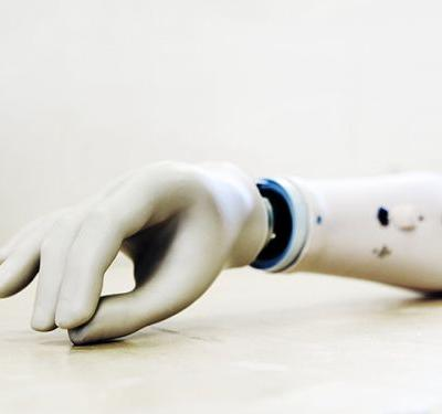 "Amputees ""Feel"" the Movement of Their Prosthetic Hands"