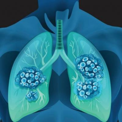 FDA approves Roche's Tecentriq for first-line, extensive-stage small-cell lung cancer