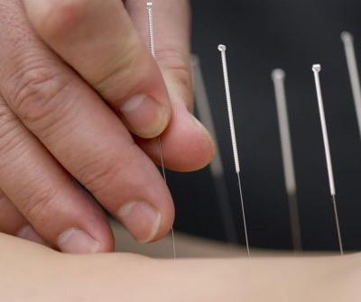Study: Acupuncture is a safe and well-tolerated treatment for improving the cognitive function of Alzheimer's patients