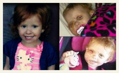 Doctors Restore Little Girl's Face After Disfiguring Pit Bull Mauling; a Miraculous and Inspiring Endeavor