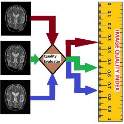 Image Quality Evaluation in Clinical Research: A Case Study on Brain and Cardiac MRI Images in Multi-Center Clinical Trials