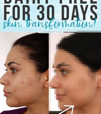 Going Dairy Free for Acne: My 30 Day Results