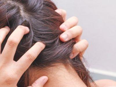Tinea Capitis (+ 6 Natural Tips to Help Treat Scalp Ringworm)