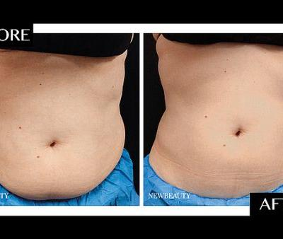 How CoolSculpting Significantly Reduced One Woman's Midsection After Just One Treatment