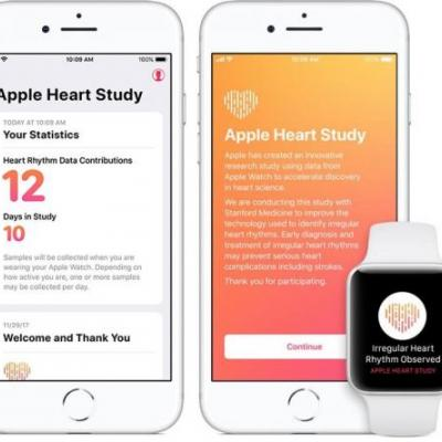 Over 2,000 Participants Received Irregular Heart Rhythm Notification in Apple Watch Study