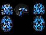 Disturbing scans reveal how brain damage caused by alcohol carries on for up to SIX WEEKS
