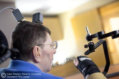 A Paralyzed Man Was Able Move His Arm With His Brain