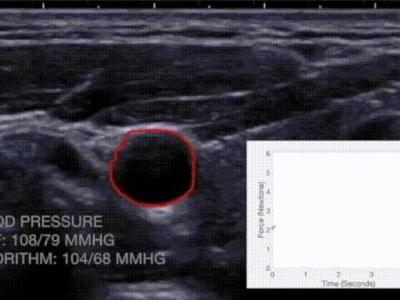 Real-Time Blood Pressure Estimation From Force-Measured Ultrasound