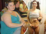 Seattle obese woman hates saggy skin on her new body