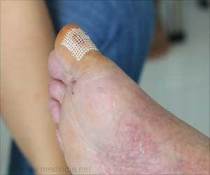 Specific Gene Deletion can Help Treat Diabetic Wounds Faster