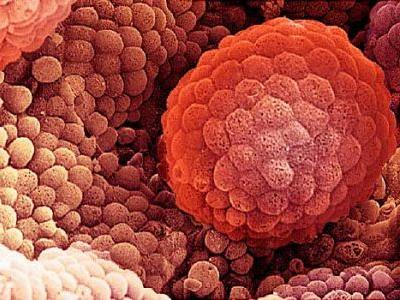 More Men Holding Off on Prostate Cancer Surgery