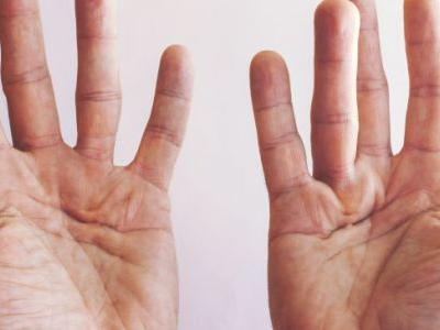 Dupuytren's Contracture + 4 Natural Remedies