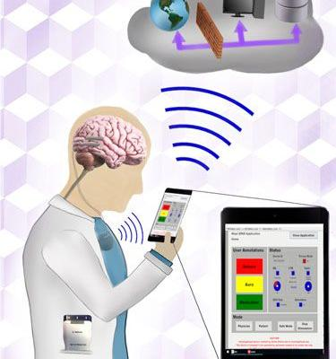 Integrating Brain Implants with Local and Distributed Computing Devices: A Next Generation Epilepsy Management System