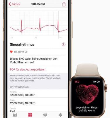 WatchOS 5.2 Rolling Out With ECG Support For More Countries