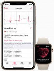 WatchOS Update Adds ECG App and Heart Rhythm Monitor