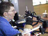 Paralysed man moves his arm and hand with brain microchip