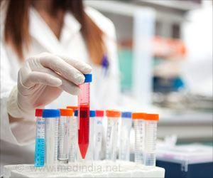 New Blood Test for Early Detection of Alzheimer's Disease