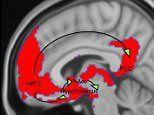 Dopamine in the brain helps mothers bond with their babies
