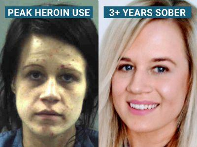 Recovering heroin addict explains why it's so hard to stay clean - even in rehab