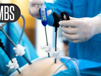 Bariatric Surgery Tied to Decreased Stroke Risk Out to 5 Years