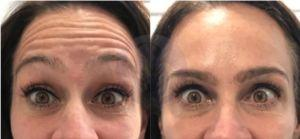 5 Signs You Will Benefit From Botox
