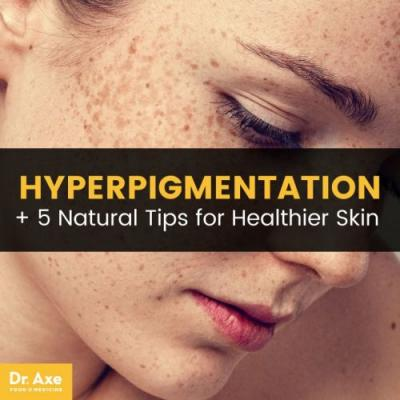 Improve Hyperpigmentation: 5 Natural Skin Care Tips to Help