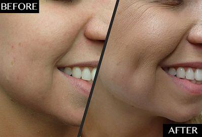 This Simple Procedure Can Give You the Dimples You've Always Wanted